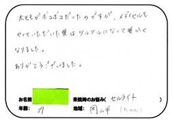 岡山市にお住いのNさん (29歳)「セルライトが気になる・・・」